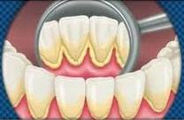 Placa y sarro en los dientes