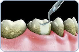 Limpieza de placa y sarro de los dientes