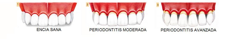 Progreso de la enfermedad periodontal