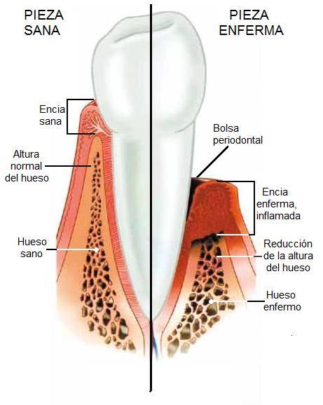Comparacion entre un diente sano y uno enfermo